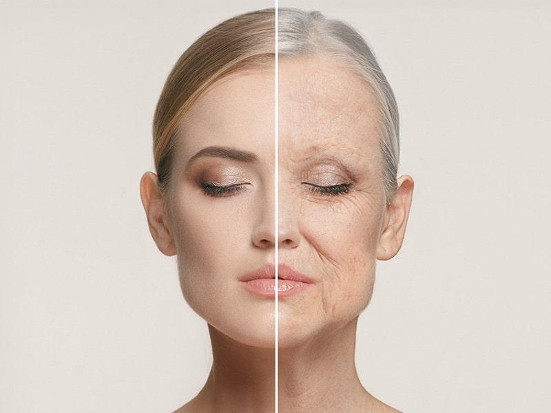 Da nhiều nếp nhăn, nếp gấp là dấu hiệu rất rõ để nhận biết lão hóa da