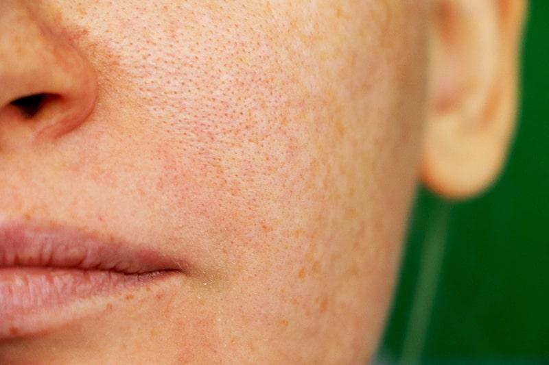 Lỗ chân lông to là 1 trong những dấu hiệu của sự lão hóa da