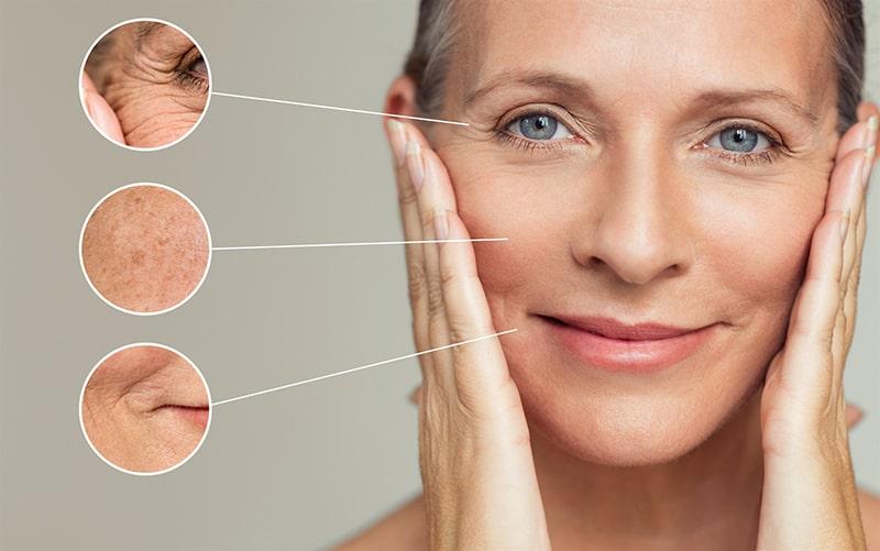 Những biểu hiện của lão hóa da
