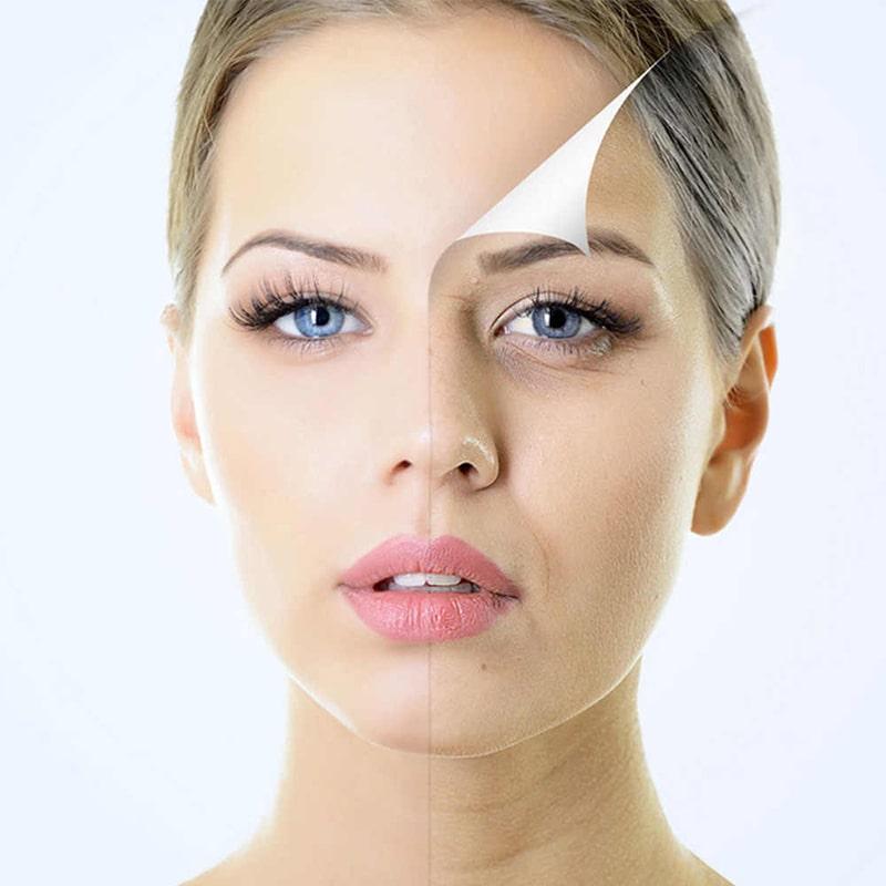 Quá trình lão hóa là 1 trong những nguyên nhân gây ra nám chân sâu
