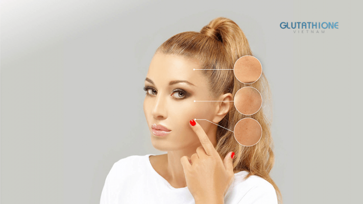 Nám da là gì? Nguyên nhân, dấu hiệu và cách chữa trị