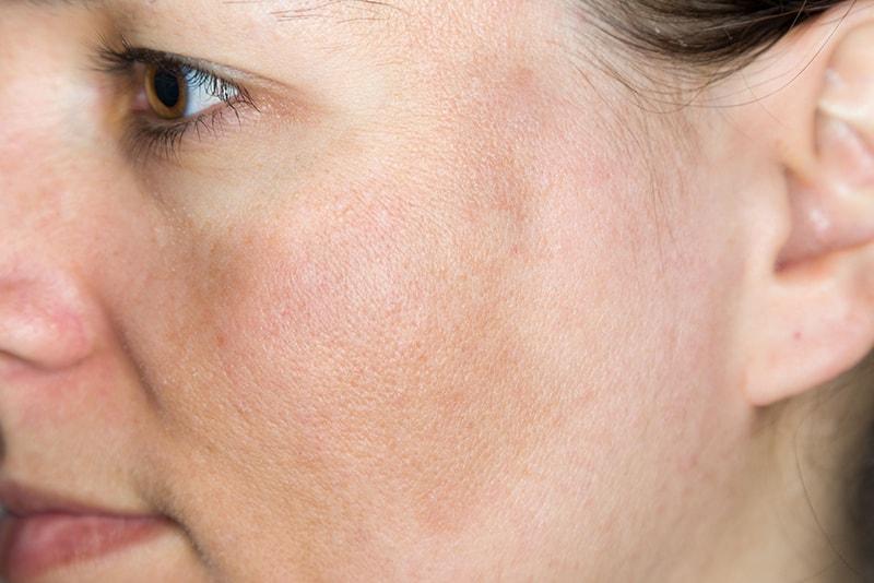 Nám mảng là 1 trong số các loại nám da