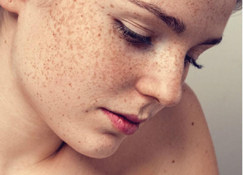 Nám chân sâu là 1 trong số các loại nám da