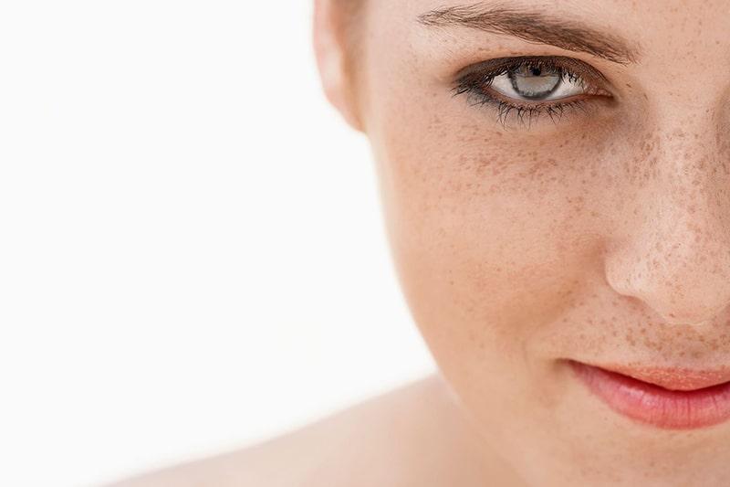 Nám nội tiết là tình trạng nám da xuất hiện do rối loạn nội tiết tố gây ra