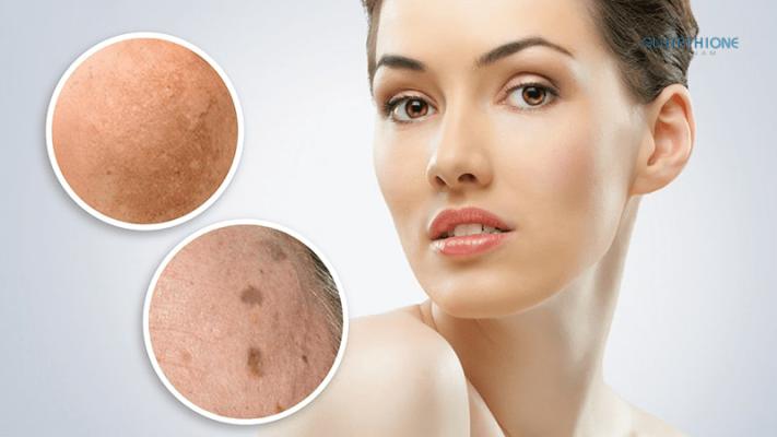 8 nguyên nhân gây nám da thường gặp nhất bạn nên biết