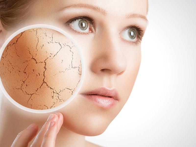 Da khô là tình trạng da sản sinh ít dầu hơn so với da thường
