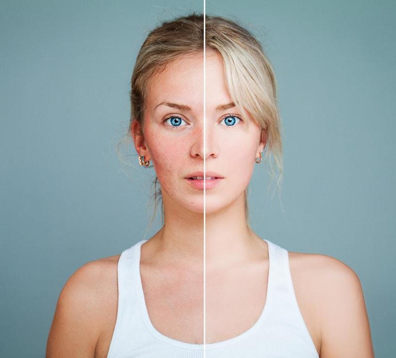 Đặc điểm của mụn ở các loại da khác nhau