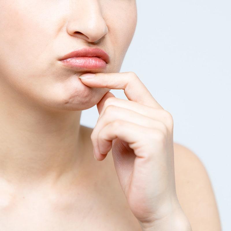 Dấu hiệu làn da yếu mỏng là gì?
