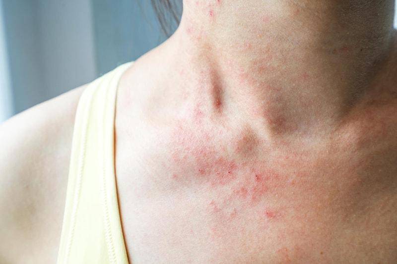 Da nhạy cảm là da như thế nào?