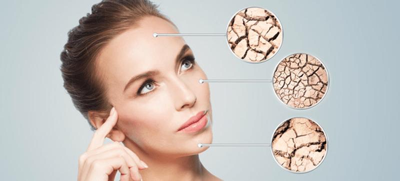 Đặc điểm của làn da khô là gì?