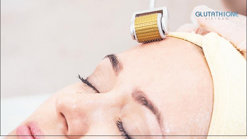 Kinh nghiệm chăm sóc da sau lăn kim cho các chị em