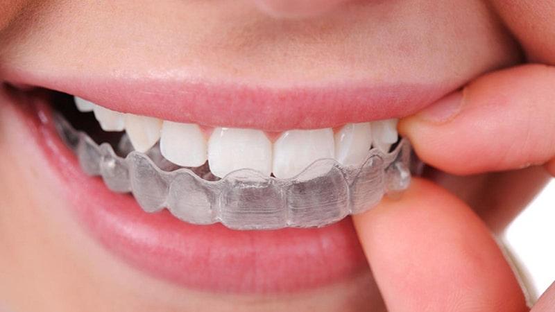 Cách tẩy trắng răng bằng máng