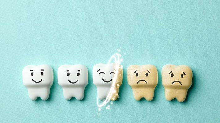 10 Cách tẩy trắng răng bị ố vàng nhanh và hiệu quả nhất
