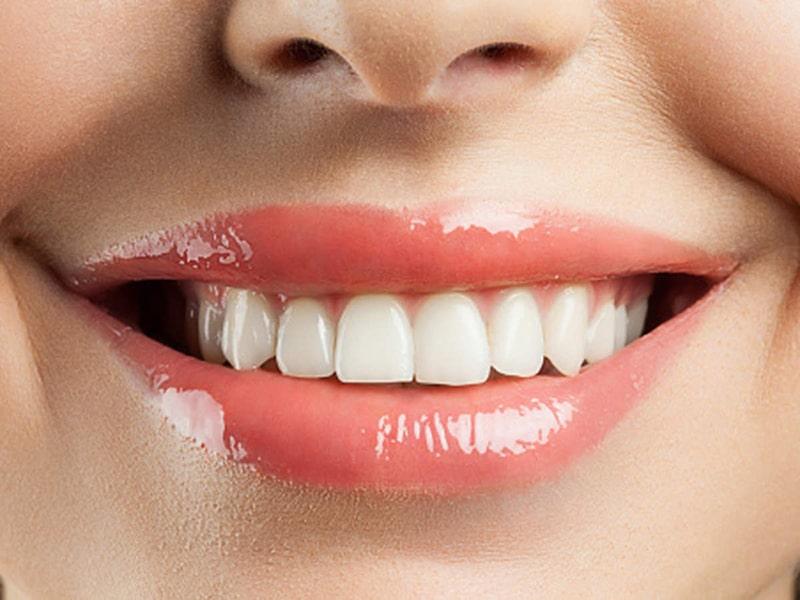 Sau bao lâu thì nên tẩy trắng răng trở lại?