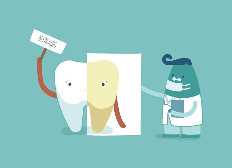 Tẩy trắng răng là gì?