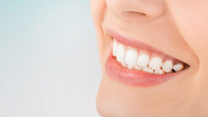 Tẩy trắng răng là gì? Những điều cần biết khi tẩy trắng răng